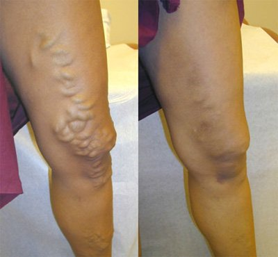 Varicose veins before and after EVLT