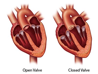 Open Valve vs. Closed Valve