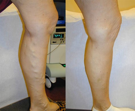 Varicose veins before and after EVLT procedure